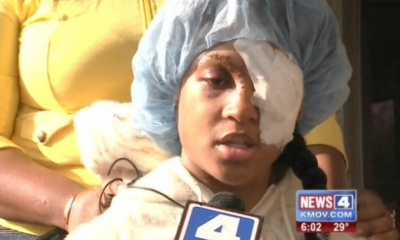 st louis woman loses eye